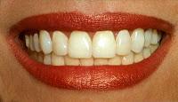 I Teeth